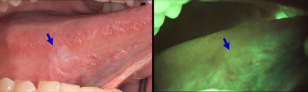 Early detection with VELscope. | Advanced Dentistry of ...Early Oral Cancer Lesions