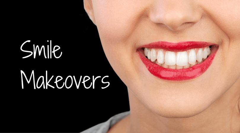 Westchester NY smile makeover dentist